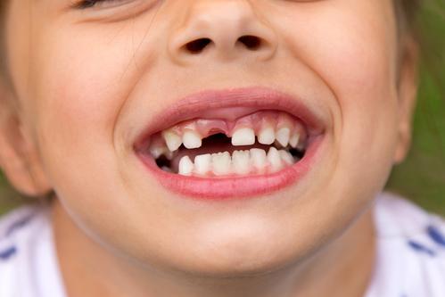 Dentition de l'enfant : développement, entretien - Ooreka