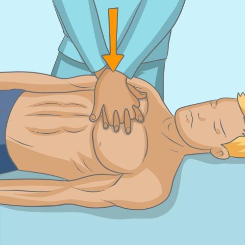 Faire un massage cardiaque