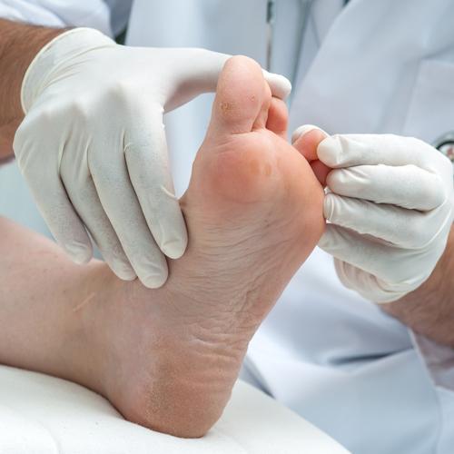 Traiter une mycose du pied