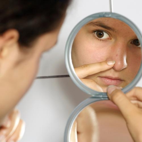 Comment éviter l'acné