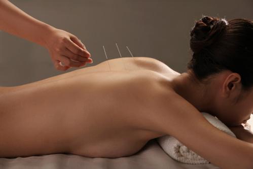 L'acupuncture contre les troubles du sommeil