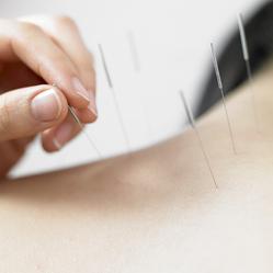 Acupuncture, l'essentiel en une page