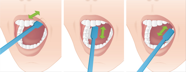 Souvent Se brosser les dents efficacement - Implant prothèse dentaire YH34