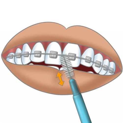 Brosse a dents electrique sur le clito