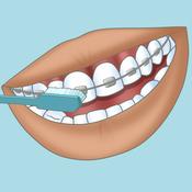 bien se laver les dents avec un appareil orthodontique appareil dentaire. Black Bedroom Furniture Sets. Home Design Ideas