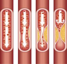 Schema atherosclerose