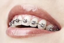 Les bagues pour les dents