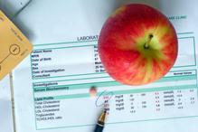En France, entre 33 et 41 % de la population a un excès de cholestérol.
