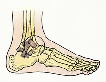 Schéma déchirure du ligament