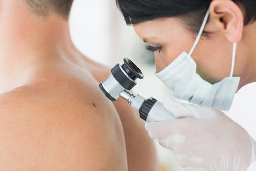 Lipome : causes et traitements - Ooreka