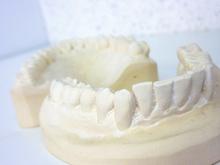 Moule dentaire en plâtre