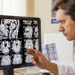 IRM cérébrale