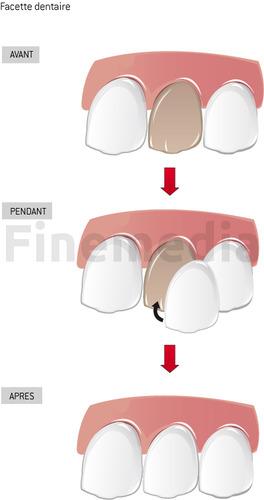Pose d'une facette dentaire