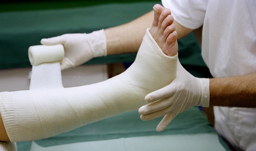 Plâtre de la jambe
