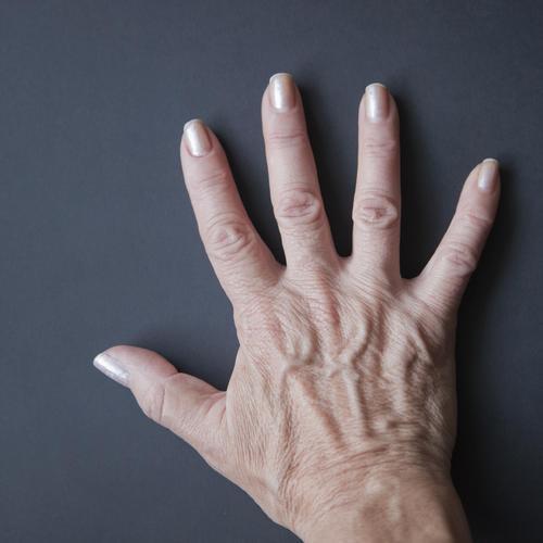 Signe du temps n° 1 : l'ostéoporose