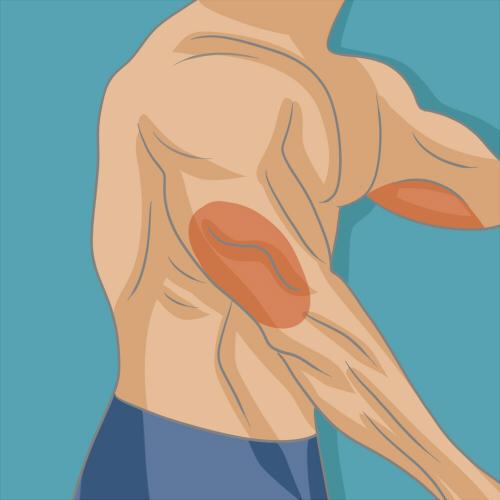 Bien muscler ses triceps