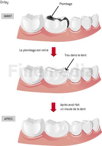 obturation dentaire prix