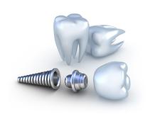 Dents et vis modèle