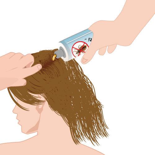 Appliquez la lotion anti-poux