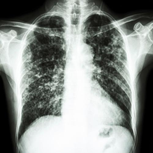 D'une pneumonie: 2%