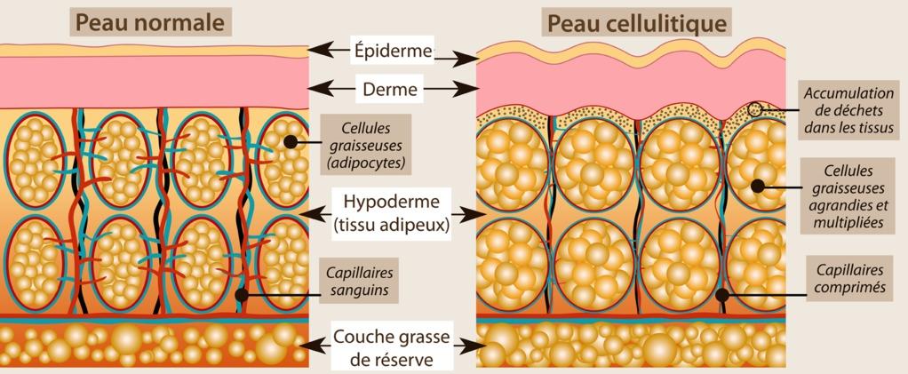 Schéma montrant le fonctionnement de la cellulite