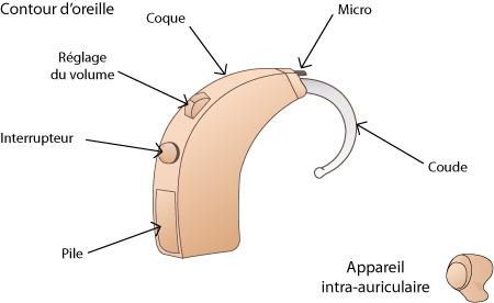 Anatomie d'une prothèse auditive