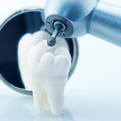 quel avenir pour les prothesiste dentaire Oui c'est peut être l'avenir mais l'avenir à quel prix (comme pour les fort de 10 années d'expérience dans le métier de prothésiste dentaire.