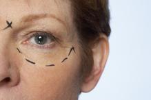 Chirurgie des yeux - blépharoplastie
