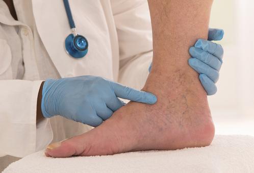 Dermite ocre : causes, diagnostic, traitement - Ooreka